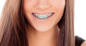 woman smiling showing off her braces from the orthodontics TX