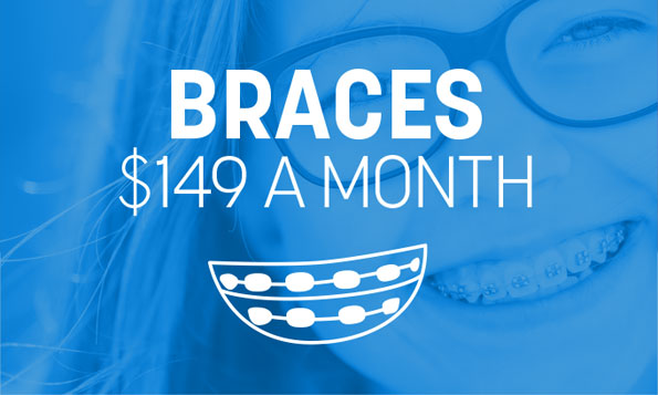 special offer on dental braces simplified