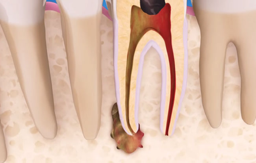 damage around tooth needing root canals TX
