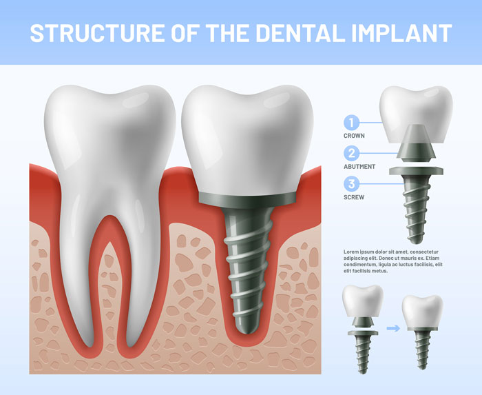 diagram showing the structure of dental implants in tx