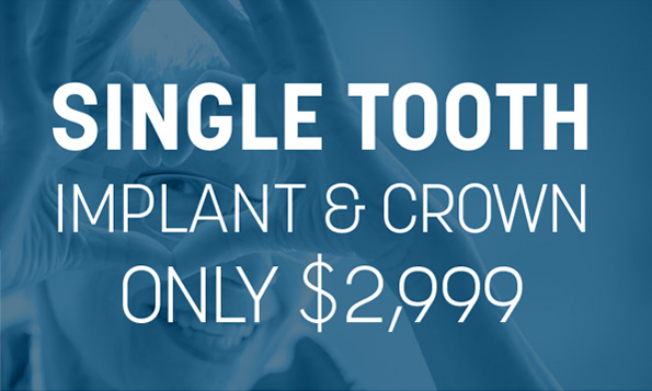 Single tooth implant and crown Lovett Dental special offers
