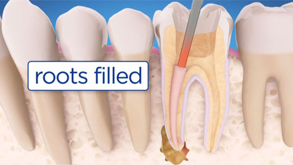 roots filled during root canal TX