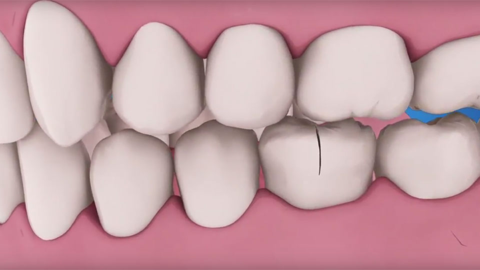 digital image of cracked tooth from trauma