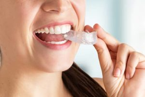 woman struggling with teeth grinding