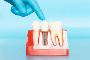 a model of dental implants is shown
